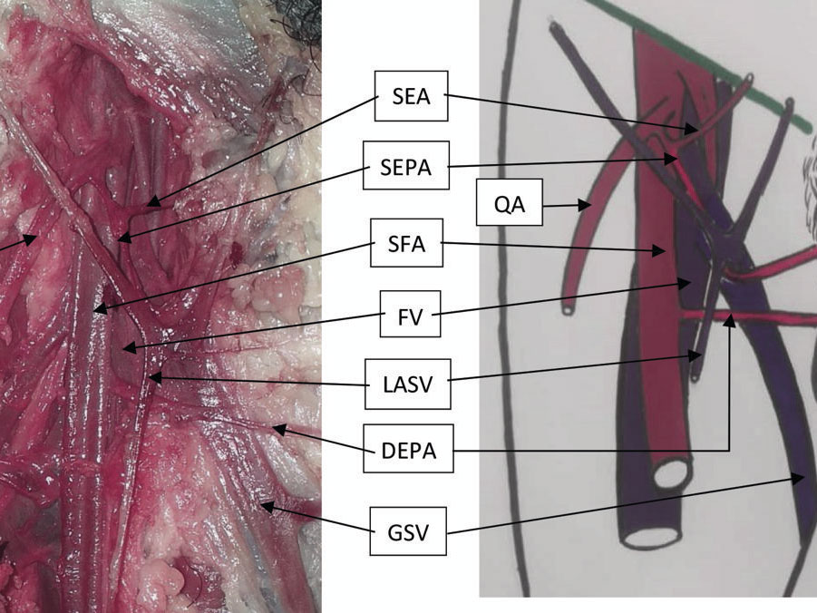 Anatomical study of the external pudendal artery at the anatomy laboratory of Bamako