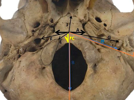 The anatomic study of extracranial structures related to tuberculum pharyngeum