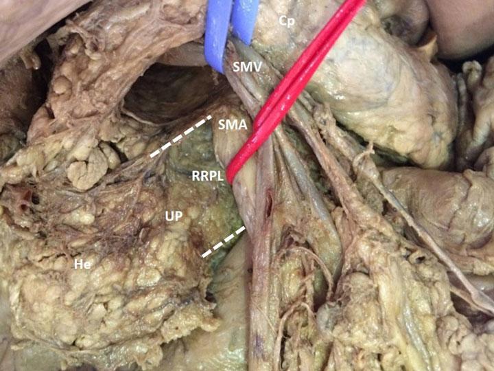 Anatomy of the right retro-portal lamina