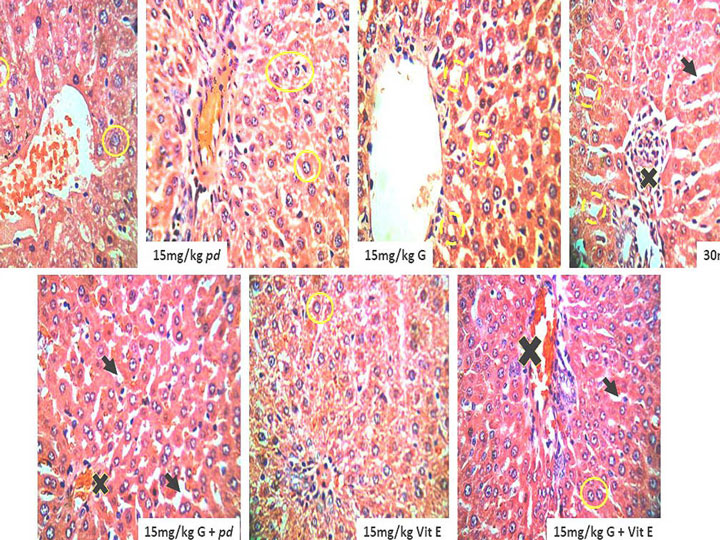 Metabolic activities and cytokeratin-7 (CK7) expression in gossypol induced hepatotoxicity treated with aqueous extract of Phoenix dactylifera in rat model