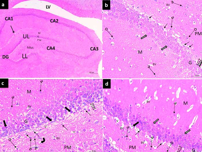 Influence of global cerebral ischemia/reperfusion injury on rat dentate gyrus and the possible protective effect of beetroot (Beta vulgaris L.) extract