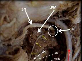 Case report of an anatomic variation of the buccal nerve (branch of Trigeminal Nerve – V3)