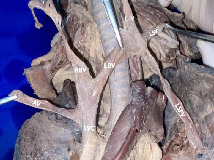 Anomalous left superior pulmonary vein draining into the left brachiocephalic trunk: case report