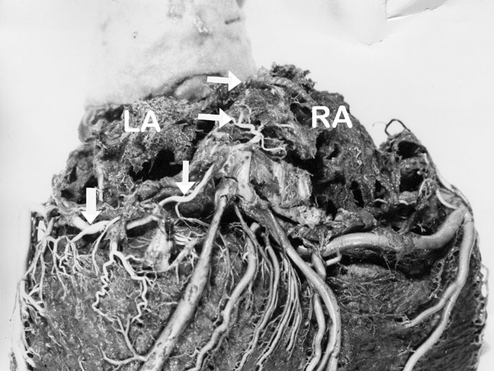 Variant of the sinus node artery with an unusual origin and course. A unique postmortem visualization after corrosion casting technique