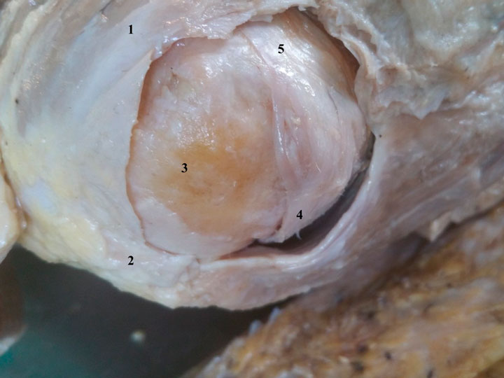 Unusual case of supraspinatus tear